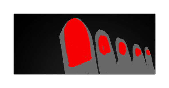 Gravestones to toenails